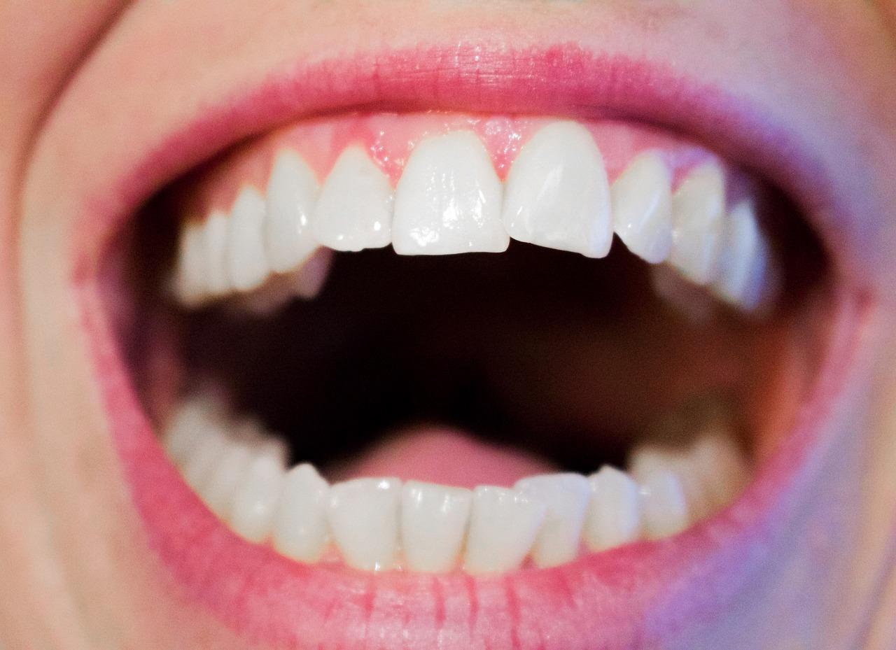 <h2>Blanchir ses dents naturellement</h2><p style='font-size:120%'>Nous souhaitons tous avoir un sourire ultra bright, mais à quel prix ? On le sait, de nombreux produits de blanchiment dentaire vendus sur Internet sont douteux et ils peuvent même détériorer l'émail des dents. Si vous ne voulez pas appliquer du peroxyde d'hydrogène sur vos dents et que vous souhaitez avoir un sourire éclatant sans allez chez le dentiste, on vous donne quelques astuces pour blanchir vos dents à la maison.   Blanchir ses dents chez soi, sans utiliser de produits dangereux, est possible de trois façons. La première astuce consiste à [...]</p><a href='https://www.pole-tourisme-vesubie.com/blanchir-ses-dents-naturellement/' class='btn'>Voir l'article</a>
